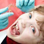 Calgary Orthodontist Shares Signs You May Need Braces   Cory Liss Orthodontics   Calgary and Alberta