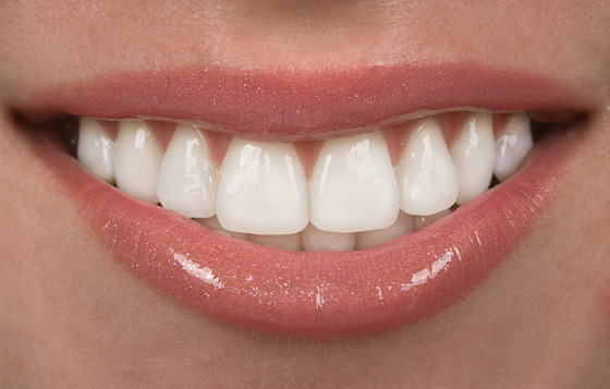 Orthodontic Treatment in Calgary for Adult Patients | Cory Liss Orthodontics | Calgary and Alberta