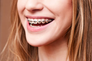 Orthodontic Braces in Calgary | Cory Liss Orthodontics