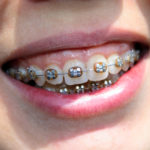 Orthodontic Treatment in NW Calgary   Calgary and Alberta