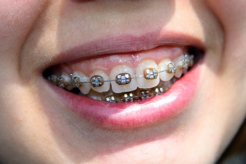 Orthodontic Treatment in NW Calgary | Calgary and Alberta