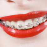 Can Orthodontic Treatment Really Help You Keep Your Teeth Longer?