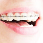 Are You Noticing White Spots Around Orthodontic Brackets?