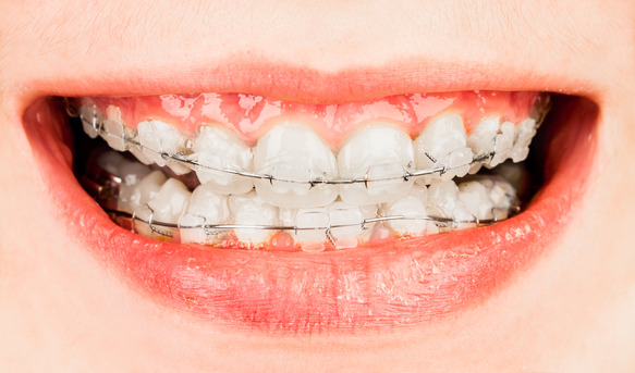 How Do I Know If I Need Braces?