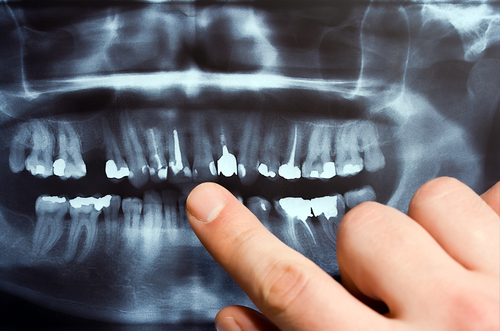 Image of a dental xray pointing at front teeth