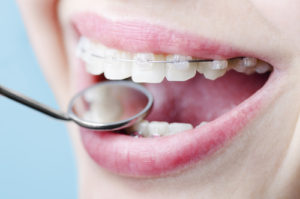 Orthodontic Treatment in Calgary - Customized For You