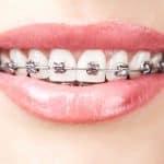 Why is Orthodontic Treatment so Important? | Calgary and Alberta Orthodontics