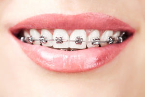 Why is Orthodontic Treatment so Important? | Calgary and Alberta Orthodontics