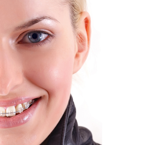 Adult Orthodontics in Calgary | Calgary and Alberta Ortho