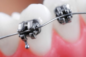 Just Got Braces – Here's Some Tips on What to Eat