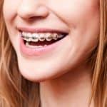 Why Your Smile Needs Orthodontic Braces - Cory Liss - Calgary Orthodontics