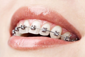 Adult Orthodontics – It's Never Too Late For a Beautiful Smile - Cory Liss - Calgary Orthodontics