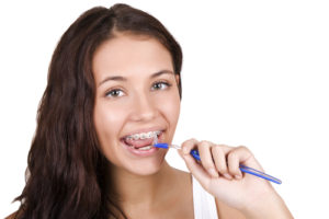 Preventing Decay While Wearing Orthodontic Braces | Calgary