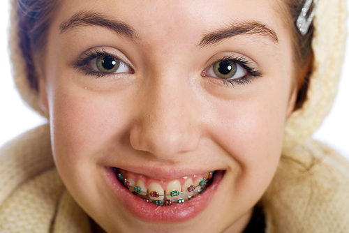 Are You Drooling Over Your Braces? | Calgary and Alberta