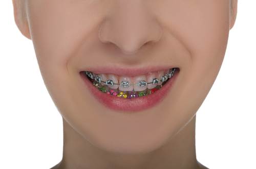 Are Orthodontic Braces Really Worth It? | Calgary & Alberta