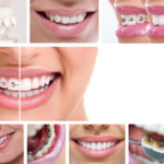 Invisalign Orthodontic Treatment - Cory Liss Orthodontics - NW Calgary Orthodontist