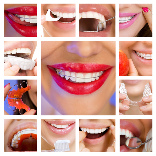 How to Floss Your Permanent Retainer - Cory Liss Orthodontics - Calgary Orthodontists