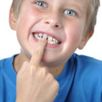 Why Do I Have a Gap Between my Front Teeth? - Cory Liss Orthodontics - NW Calgary Orthodontist