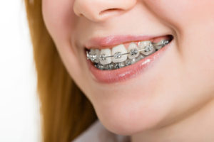 Why Doesn't Everyone Wear the Same Braces? - Cory Liss Orthodontics - Orthodontics Calgary