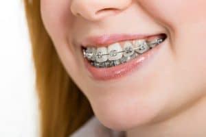 Why Doesn't Everyone Wear the Same Braces? - Cory Liss Orthodontics - Orthodontics Calgary