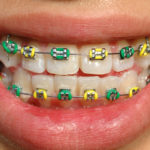 Wondering Why Your Braces are Still On? - Cory Liss Orthodontics - Orthodontics Calgary