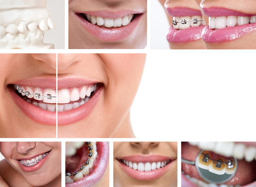 Wearing Braces - Cory Liss Orthodontics - NW Calgary Orthodontists