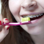 How To Clean Your Orthodontic Retainer? - Cory Liss Orthodontics - Dental Retainers Calgary