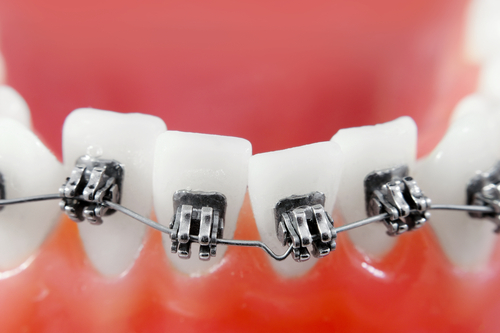Why Are My Teeth Moving After Orthodontic Treatment? - Cory Liss Orthodontics - Teeth Straightening Options Calgary