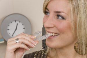 Invisalign 101: Taking Care of Your Aligners - Cory Liss Orthodontics - Orthodontic Treatment Calgary