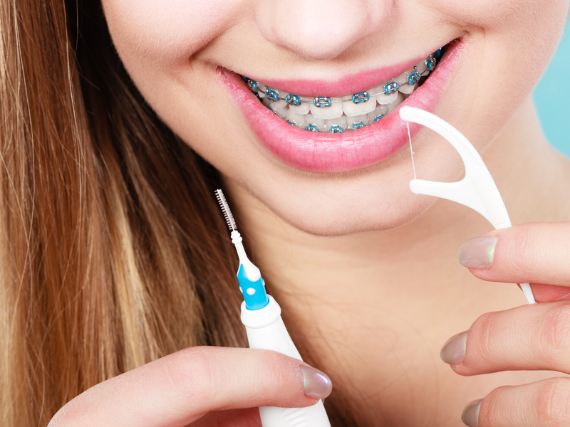 Flossing with Braces and Why It's Important - Cory Liss Orthodontics - Orthodontists in Calgary