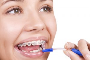 All About PROPEL Orthodontics - Cory Liss Orthodontics - Orthodontics in Calgary