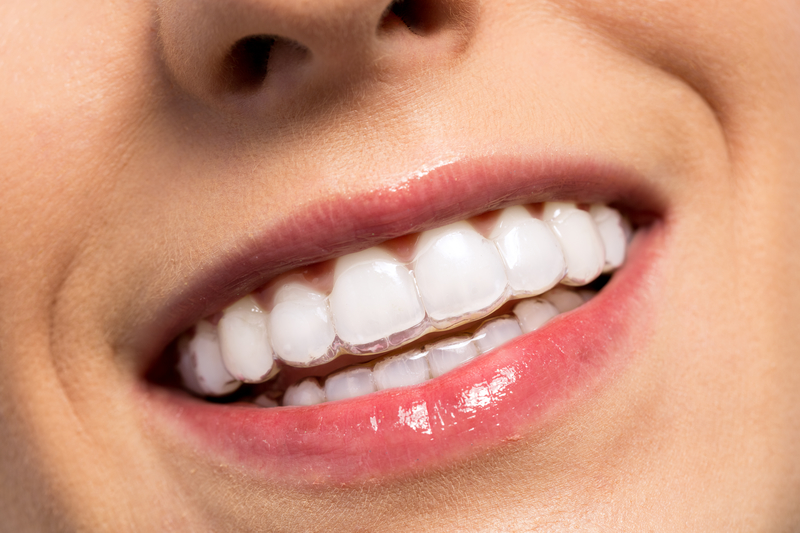 Benefits of Adult Invisalign Treatment - Cory Liss Orthodontics - Calgary Orthodontists
