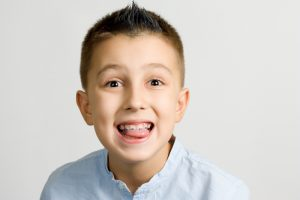 3 Common Myths About Braces - Cory Liss Orthodontics - Orthodontics in Calgary