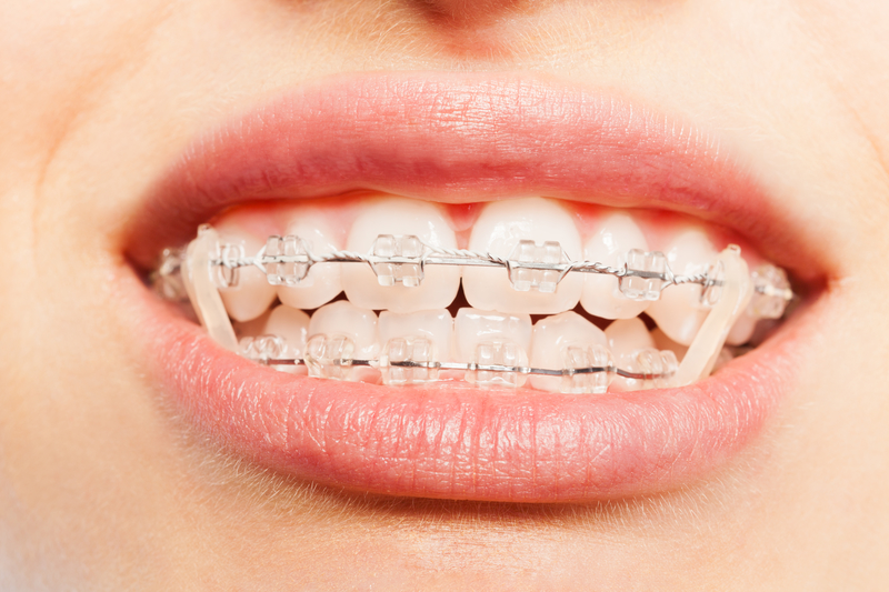 Importance of Elastic Wear During Treatment - Cory Liss Orthodontics - Orthodontists in Calgary