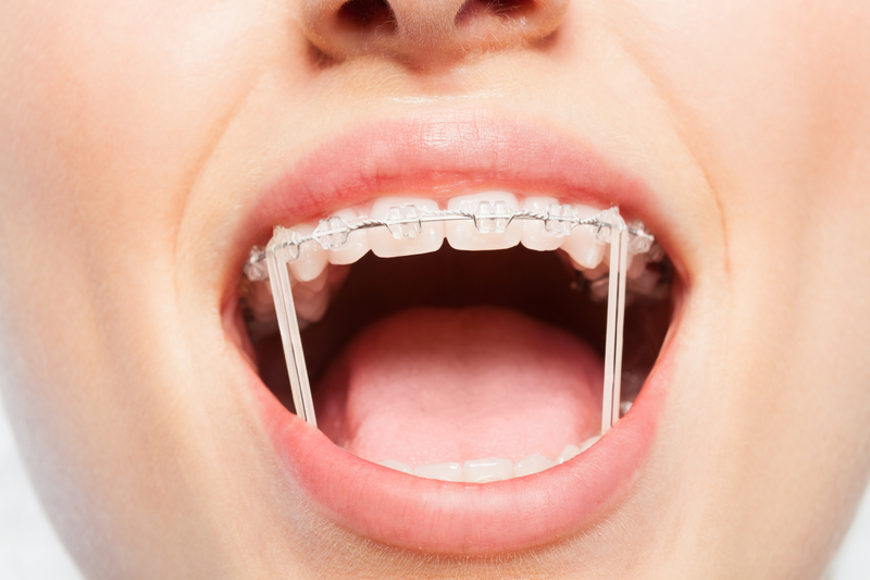 Why an Ideal Bite Is So Important - Cory Liss Orthodontics - Orthodontists in Calgary